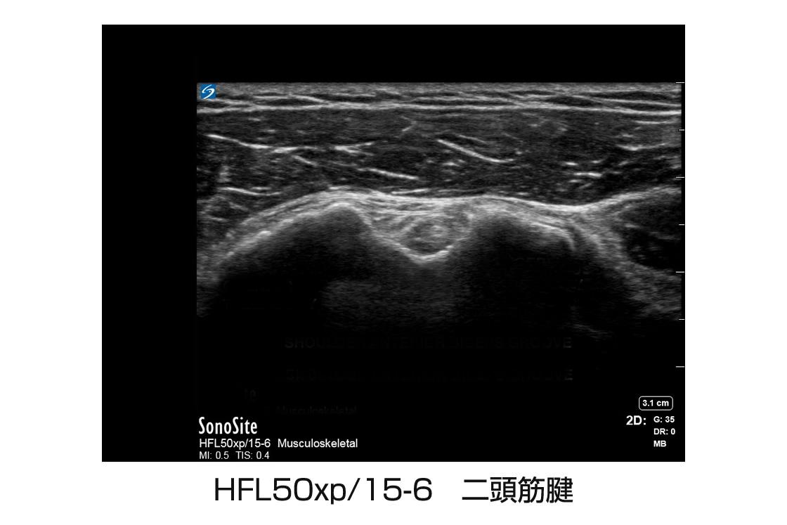 HFL50xp/15-6 二頭筋腱