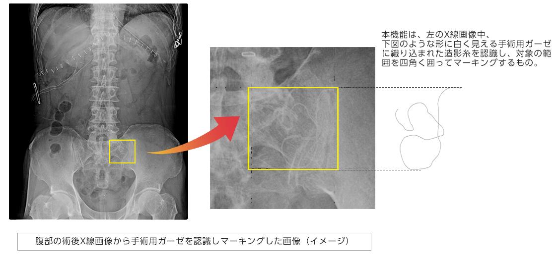 [画像]腹部の術後X線画像から手術用ガーゼを認識しマーキングした画像(イメージ)