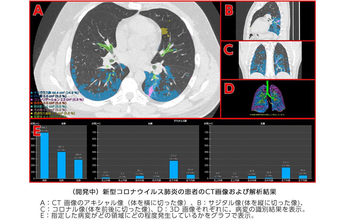 [画像](開発中)新型コロナウイルス肺炎の患者のCT画像および解析結果