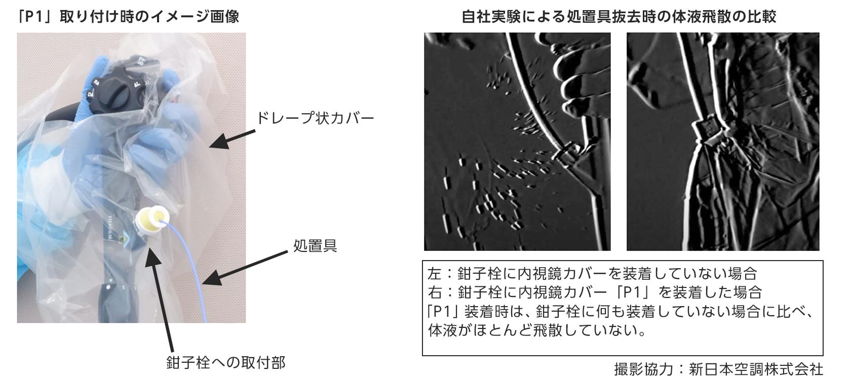 [図]内視鏡カバー「P1」の特長