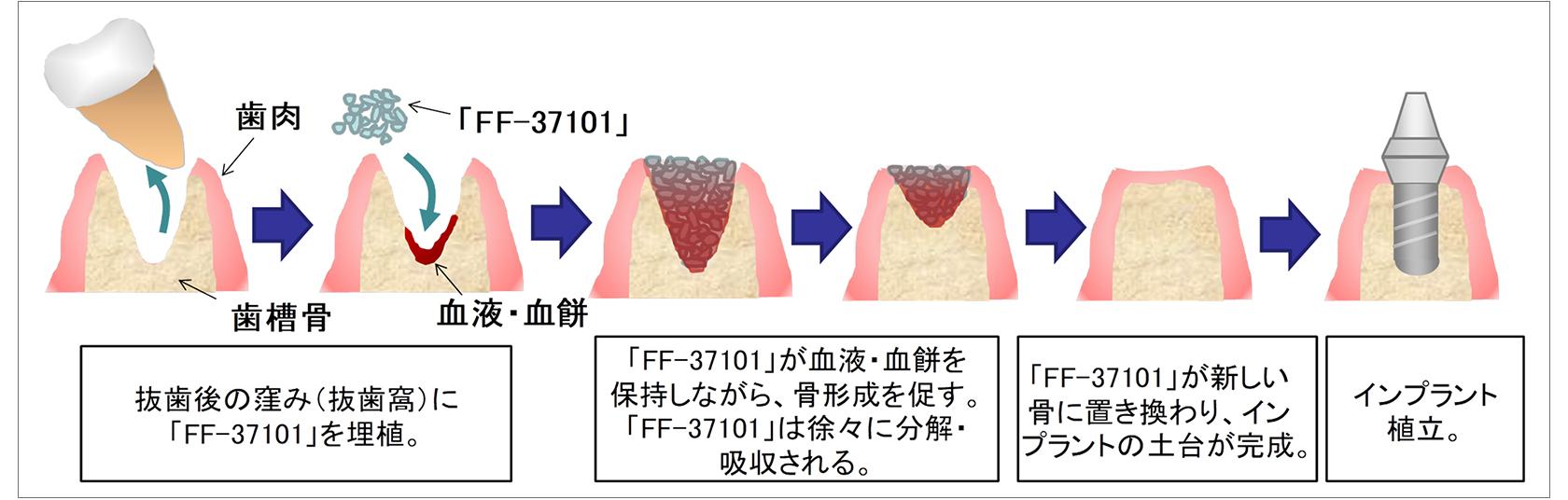 [図]「FF-37101」を用いた骨形成メカニズム(歯科インプラント治療の場合)