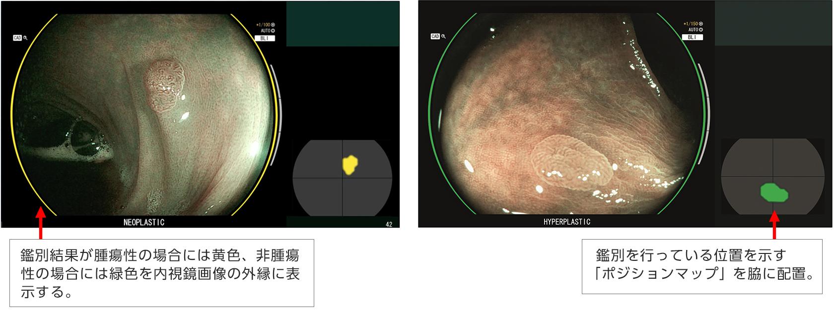 [画像]CAD EYE 疾患鑑別支援機能