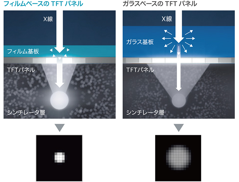[画像](2)ISS方式とフレキシブルTFTの組み合わせで低線量・高画質を実現。