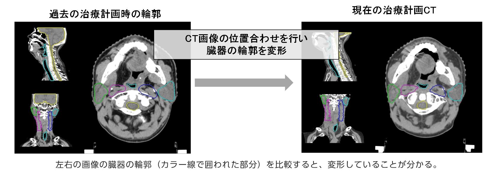 [画像]輪郭プロパゲーション機能