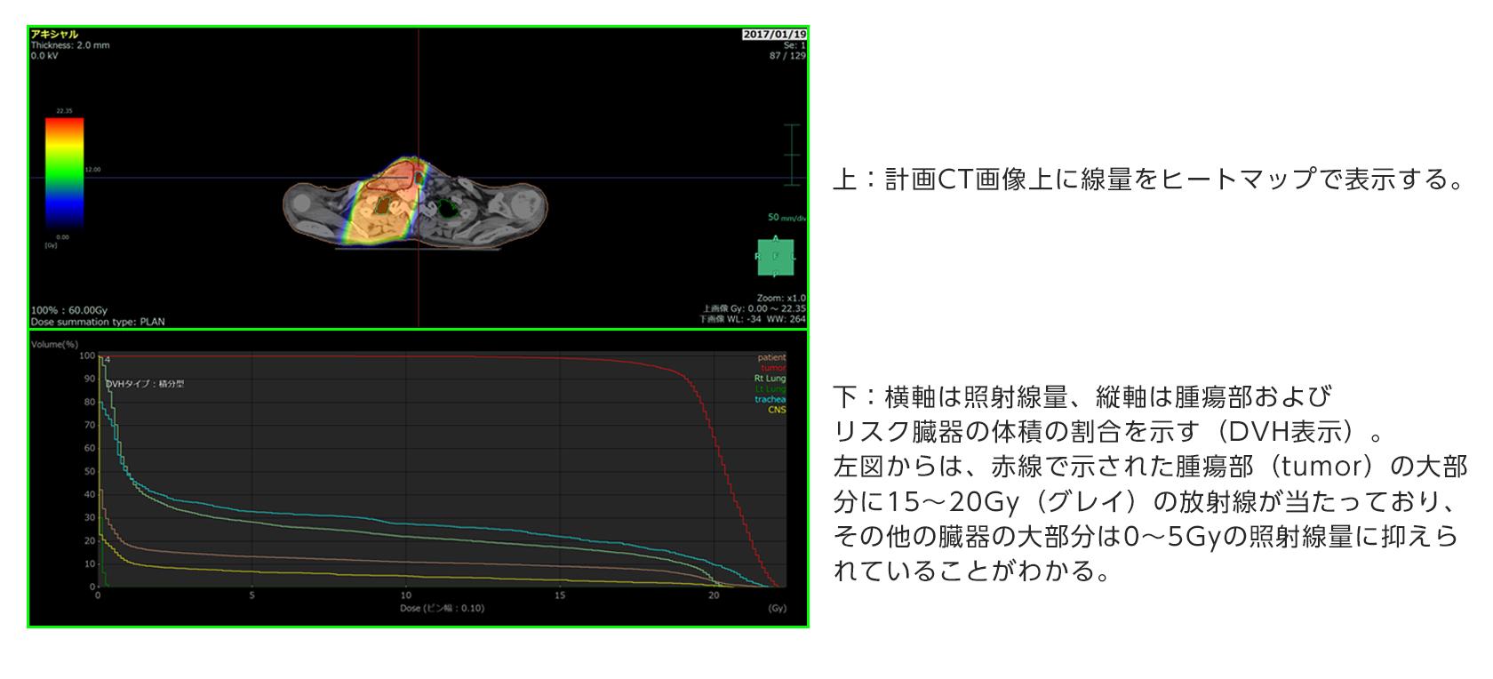 [画像]線量表示機能