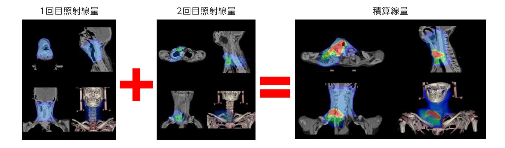 [画像]非剛体レジストレーション機能による線量積算機能
