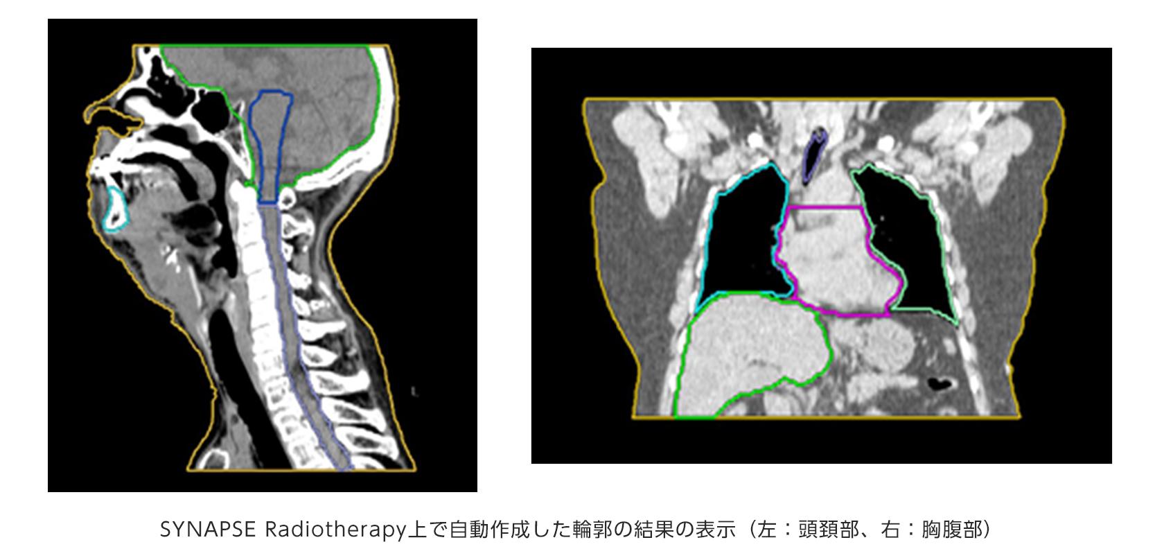 [画像]SYNAPSE Radiotherapy上で自動作成した輪郭の結果の表示(左:頭頚部、右:胸腹部)