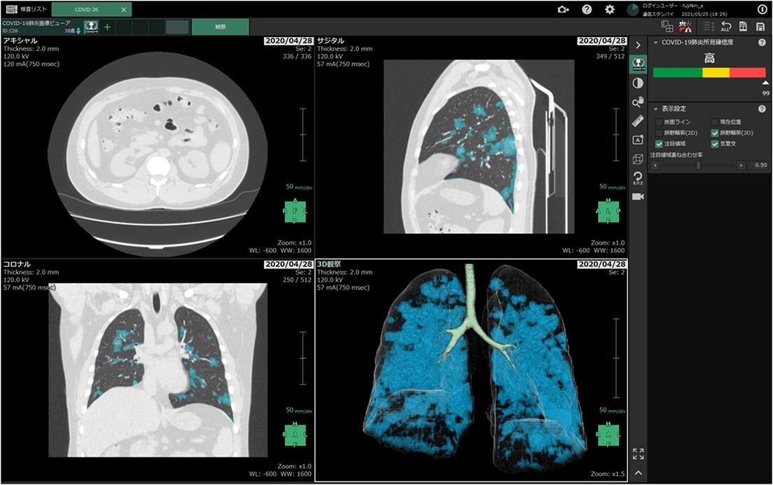 [画像]「COVID-19肺炎 画像解析プログラム」 画面イメージ