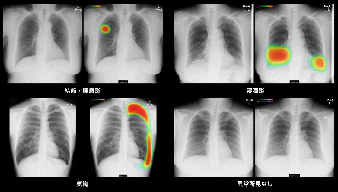 [画像]結節・腫瘤影、浸潤影、気胸の3所見と異常所見なし