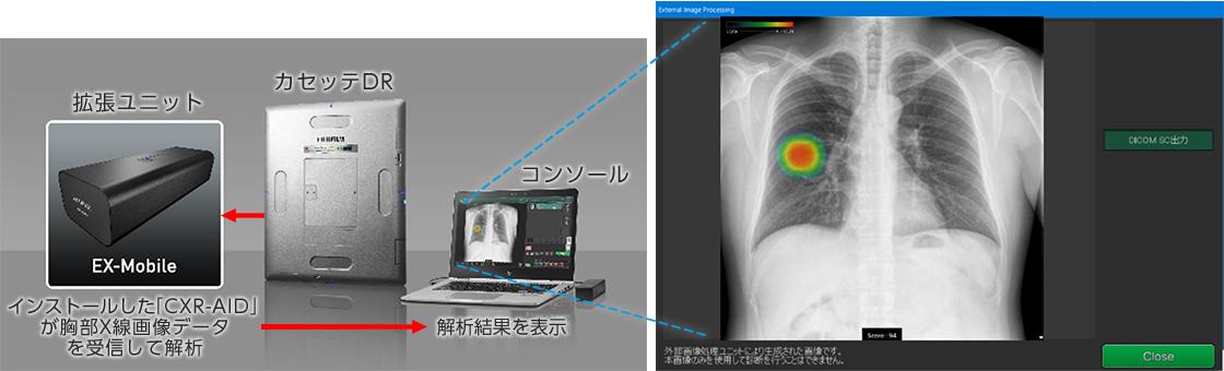[画像]拡張ユニットEX-Mobileにインストールした「CXR-AID」が胸部X線画像データを受信して解析