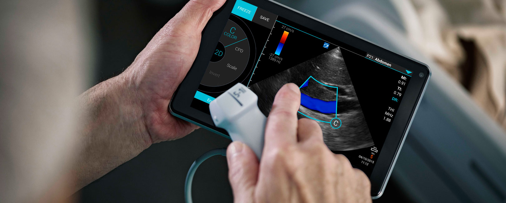 [photo] Hands holding touchscreen and transducer, while interacting with touchscreen with ultrasound image on screen