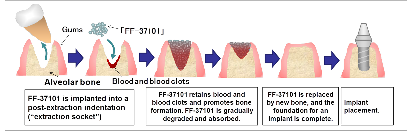 [image]The mechanism of bone regeneration using FF-37101 (in the case of dental implant treatment)